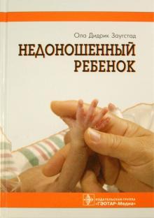 Недоношенный ребенок. Если ребенок родился раньше
